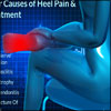 5 Major Causes of Heel Pain