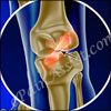 Treatment for ACL Tear: Surgery, Post Operative Rehab, Recovery