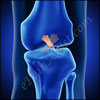 What is an ACL Tear and What are its Signs and Symptoms?