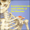 Acromioclavicular Joint Arthritis Of The Shoulder: Causes, Symptoms, Treatment
