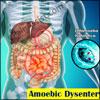 Amoebic Dysentery: Causes, Spread, Symptoms, Treatment, Prevention