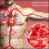 What Causes Anemia and How Can It Be Treated?