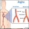 Angina: Types, Causes, Symptoms, Treatment- Beta, Calcium Channel Blockers, Surgery