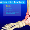 Ankle Joint Fracture: Types, Classification, Symptoms, Treatment, Recovery