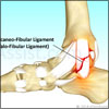 Ankle Joint Ligament Injury: Treatment, Recovery Period, Exercises, Causes, Types, Symptoms