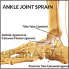 Ankle Joint Sprain: Causes, Types, Symptoms, Treatment- Conservative, Specific, PT