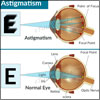 Astigmatism: Causes, Types, Symptoms, Treatment- Lenses, Refractive Surgery
