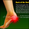 Back of the Heel Pain: What Can Cause Pain in the Back of the Heel
