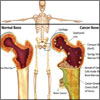 Bone Cancer: Types, Stages, Causes, Symptoms, Treatment- Surgery, Radiation, Chemotherapy