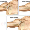 Shoulder Joint Dislocation: Causes, Types, Complications