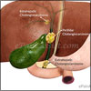 Cholangiocarcinoma: Types, Staging, Diagnosis