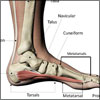 Foot Pain & Its Anatomical Distribution, Causes of Foot Pain