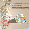Compression Fracture of the Spine: Understand the Causes, Symptoms, Different Treatment Options