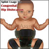 Congenital Hip Dislocation or Developmental Dysplasia of the Hip: Recovery, Prognosis, Splint, Prevention, Coping