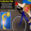 Cycling Knee Pain: Conditions, Causes, Prevention