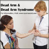 Dead Arm & Dead Arm Syndrome: Causes, Symptoms, Treatment, Exercises