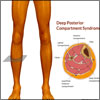 Deep Posterior Compartment Syndrome: Symptoms, Causes, Treatment