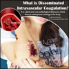 Disseminated Intravascular Coagulation: Causes, Symptoms, Treatment, Complications, Risk Factors