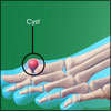 Foot Cyst or Toe Cyst - Causes, Symptoms, Treatment