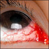 Foreign Body In The Eye: Causes, Symptoms, Treatment- Antibiotic Eye Drops, Ointment