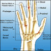 Fracture of Hand and Fingers: Risk Factors, Causes, Types, Symptoms, Signs, Treatment