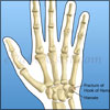 Fracture of Hook of Hamate: Causes, Signs, Symptoms, Treatment, Exercises, Investigations