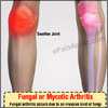 Fungal or Mycotic Arthritis: Causes, Symptoms, Treatment- Antifungal, Investigations