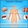 Gaucher's Disease or Glucosylceramidase Deficiency: Types, Causes, Signs, Symptoms, Treatment
