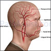 Giant Cell Arteritis or Temporal Arteritis