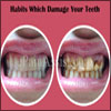 Habits Which Damage Your Teeth