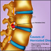 What is Herniated Disc?