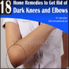 18 Home Remedies to Get Rid of Dark Knees and Elbows