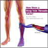How Does a Deep Vein Thrombosis Form?