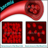 How to Diagnose Anemia?