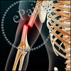 Humeral Fracture:Causes, Symptoms, Treatment, Recovery, Exercise