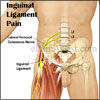 Inguinal Ligament Pain: Causes, Symptoms, Treatment