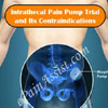Intrathecal Pain Pump Trial and Its Contraindications