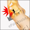Lateral Foot Pain or Pain on the Outer Side of the Foot!