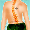 Levoscoliosis: Treatment, Braces, Physical Therapy, Surgery, Exercises