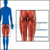 Massage Therapy for Pulled Hamstring or Hamstring Strain: Sports Massage Technique