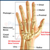 Metacarpal Fracture or Broken Hand
