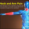 Neck and Arm Pain: Can your Arm Pain be Related to Neck Pain?