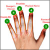 Numb Fingertips: What Can Cause Your Fingertips To Go Numb?