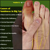 Causes of Numbness in Big Toe & its Treatment