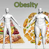 Obesity: Classification, Causes, Complications, Treatment- Diet Control, Medications, Exercises, Surgery