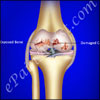 Osteochondral Fractures of Knee or Articular Cartilage Injury: Causes, Subchondral