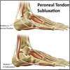 Peroneal Tendon Subluxation or Dislocation: Causes, Symptoms, Treatment, Recovery, Exercises
