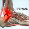 Peroneal Tendonitis or Peroneal Tendinitis: Causes, Symptoms, Treatment, Recovery