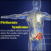 Piriformis Syndrome: Types, Causes, Signs, Treatment, PT, Prevention, Exercises