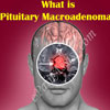 What is Pituitary Macroadenoma: Causes, Symptoms, Treatment, Diagnosis